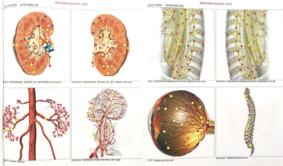 v-wellness-centre-kuala-lumpur-malaysia-17-bio-resonance-scan