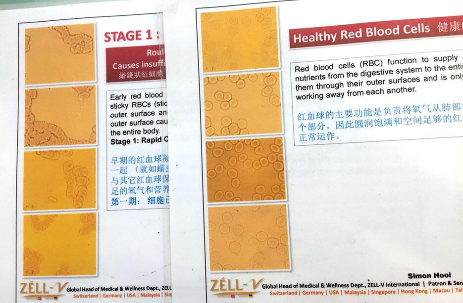 v-wellness-centre-kuala-lumpur-malaysia-4-live-blood-analysis